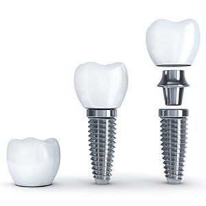 The parts of a dental implant, which is what we offered at Morgan Family Dental